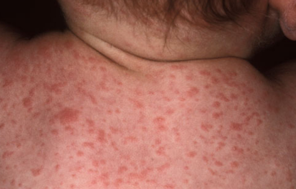A closer look on Roseola rash picture photo