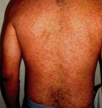 Endemic typhus rash pictures