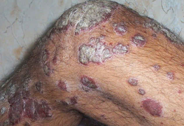 Exacerbation of psoriasis rash picture image in an HIV infected patient