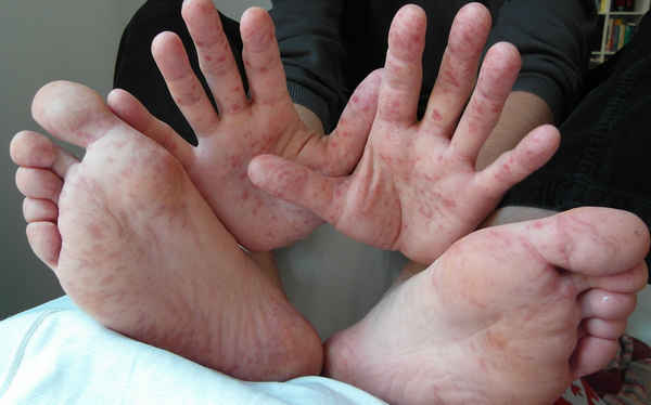 Hand-foot-and-mouth- disease Rash Pictures images photo