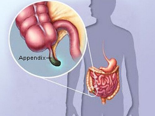 ▷ Appendix - Location, What side is your appendix on (Pictures ...