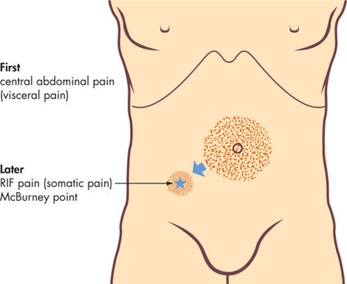 Appendix - Location, What side is your appendix on ...