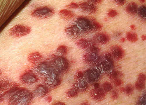 Rash due to Kaposi's Sarcoma in an HIV infected patient picture photo