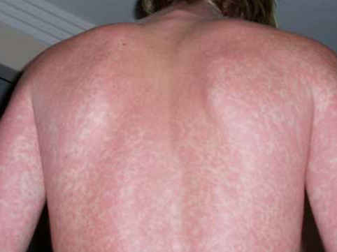 Rash in case of a patient with infectious mononucleosis photos pictures