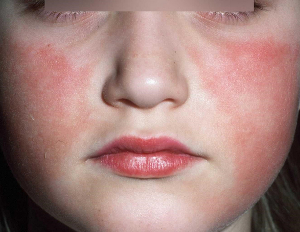 Rash of Erythema infectiosum can be seen on the cheeks of this child pictures photo image