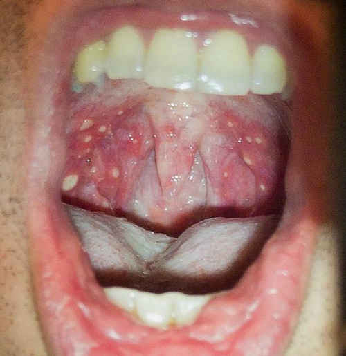 Rashes can be seen inside the mouth in a case of HFMD image picture