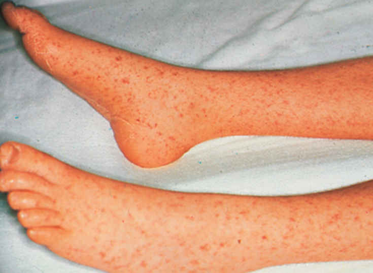 Rocky Mountain Spotted fever- Rashes on ankles, legs and soles