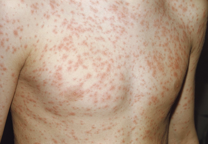 Rubella (German measles, third disease) Rash Pictures photos images