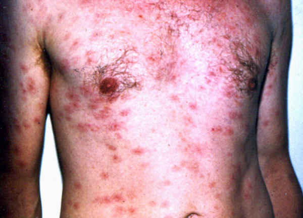 Secondary syphilis with rash over trunk pictures images