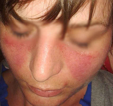 Systemic Lupus Erythematosis (SLE) Rash Pictures