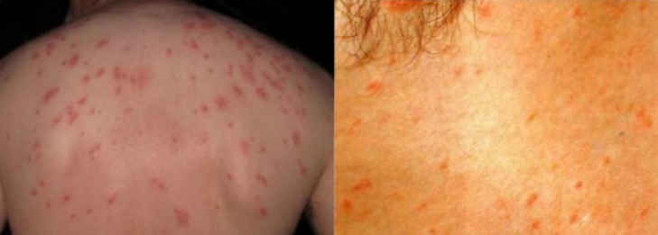 Typhoid fever rash pictures with Rose spots
