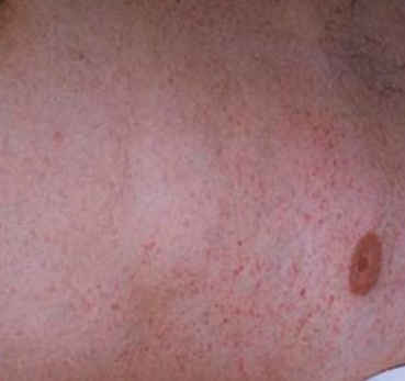 Typhus fever rash pictures