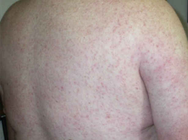 West Nile fever Rash Pictures photos