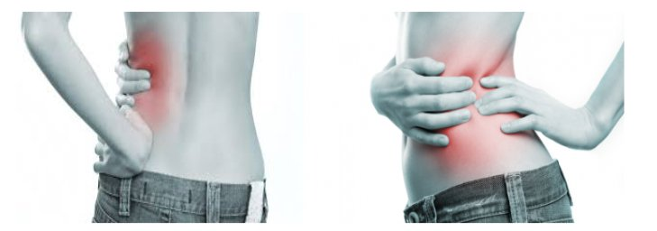Kidney Pain Location Anatomy Causes Stone Pain Relief Symptoms