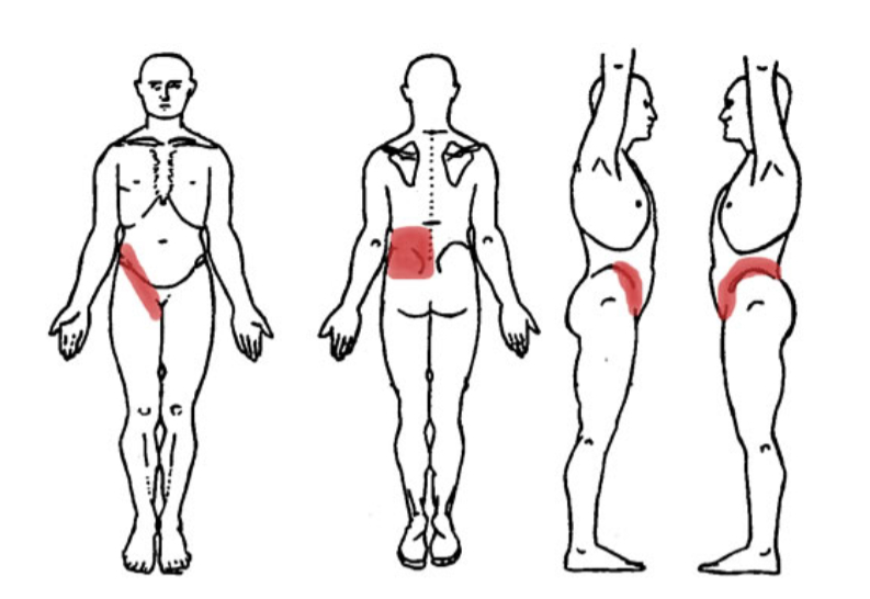 Kidney Pain Location Anatomy Causes Stone Pain