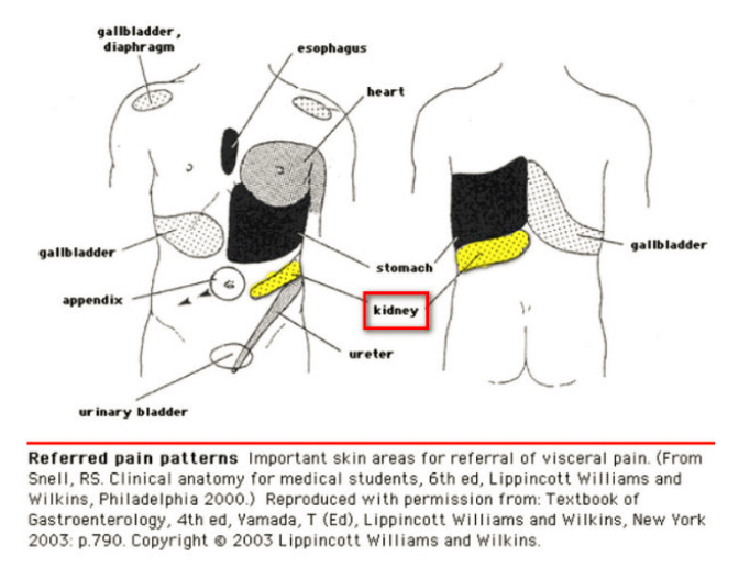 Kidney Pain Location Anatomy Causes Stone Pain Relief