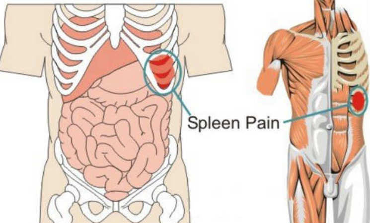Spleen Pain Location Function Enlarged And Ruptured Spleen