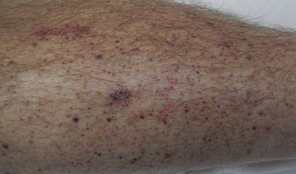 Petechiae on leg of a patient picture image