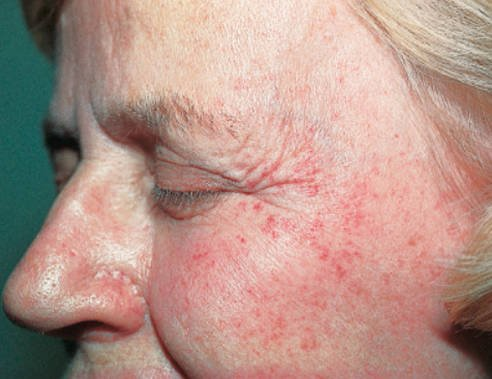 Petechiae on the face in an elderly lady pictures