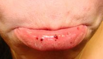 Petechiae over the mucosa of lips picture