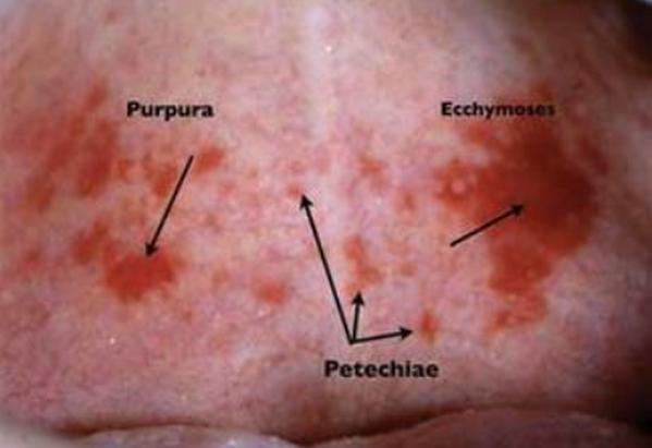 image differentiates between Petechiae, ecchymosis and purpura
