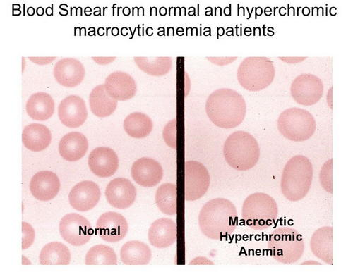An image comparing peripheral smears showing normal RBC and macrocytic RBC photo picture