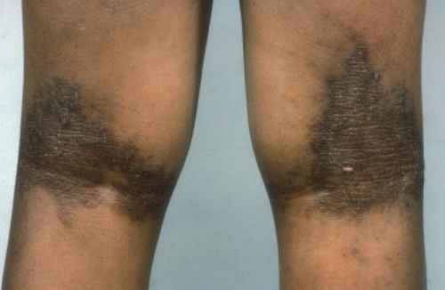 Eczema on popliteal fossa (Behind the knees) with Lichenification picture