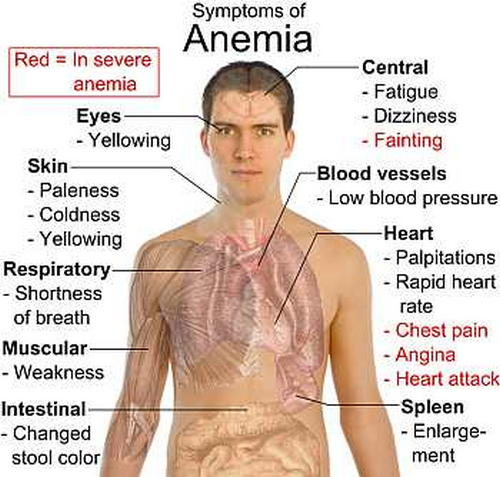 Symptoms of Anemia image photo picture