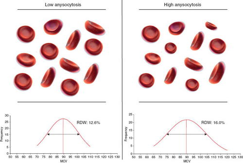 The variation in low and high anisocytosis can be seen in this image photo picture