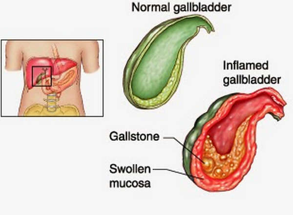 A pictorial comparison between a normal gallbladder and a gallbladder with acute cholecystitis image picture