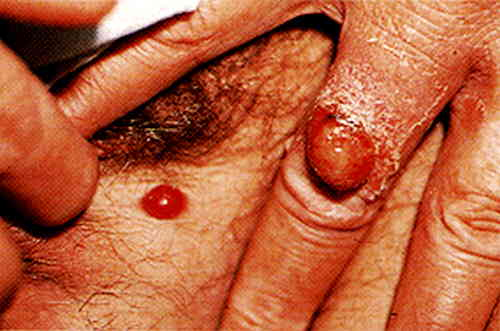 An HIV infected person with bacillary angiomatosis picture 5