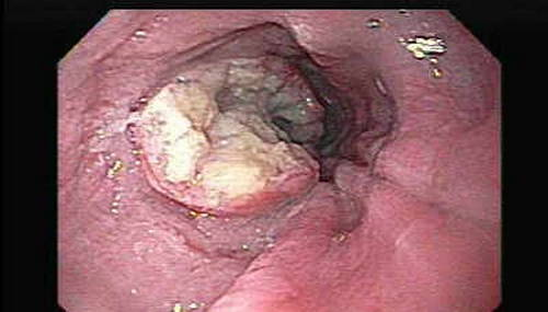 An endoscopic image of oesophagus showing cancerous growth leading to odynophagia 2