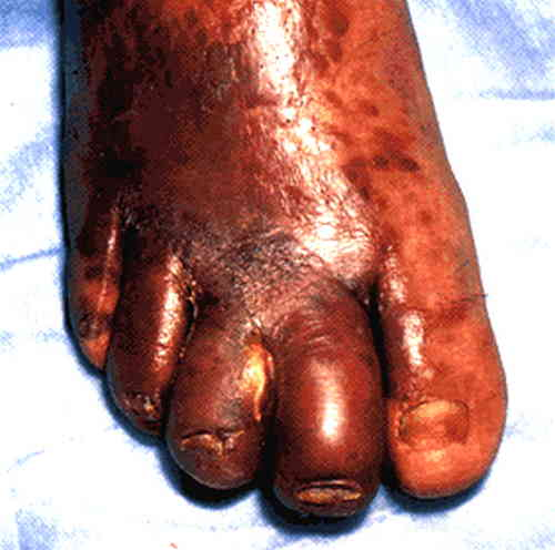 HIV rash in foot can be seen in this patient with Kaposi's sarcoma feet 9