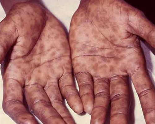 ▷ HIV Rash - Pictures (Images), Symptoms, Causes and How