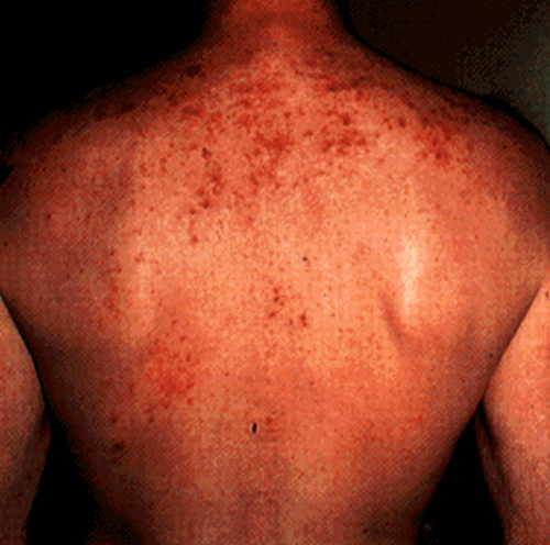 HIV rashes on back of a person due to staphylococcal infection 4