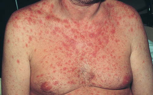 HIV rashes on chest picture 15