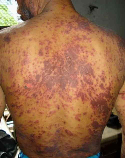 what does an hiv rash look like image 3