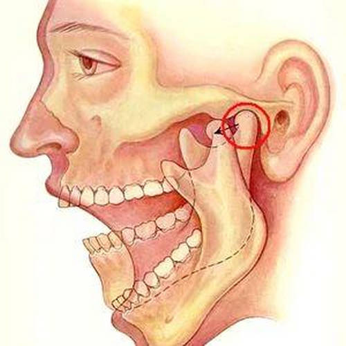 The TMJ (encircled), allowing the mouth to open and close image photo picture