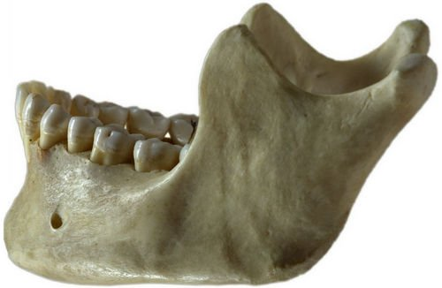 The jawbone holding the lower set of teeth image photo picture