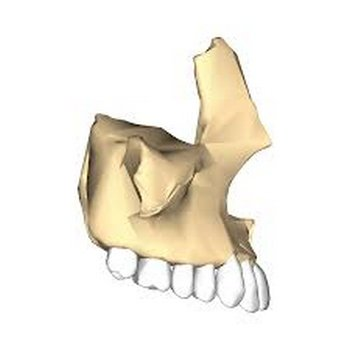 The upper jawbone holding the upper set of teeth image photo picture